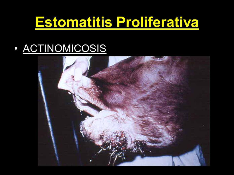 Estomatitis Proliferativa