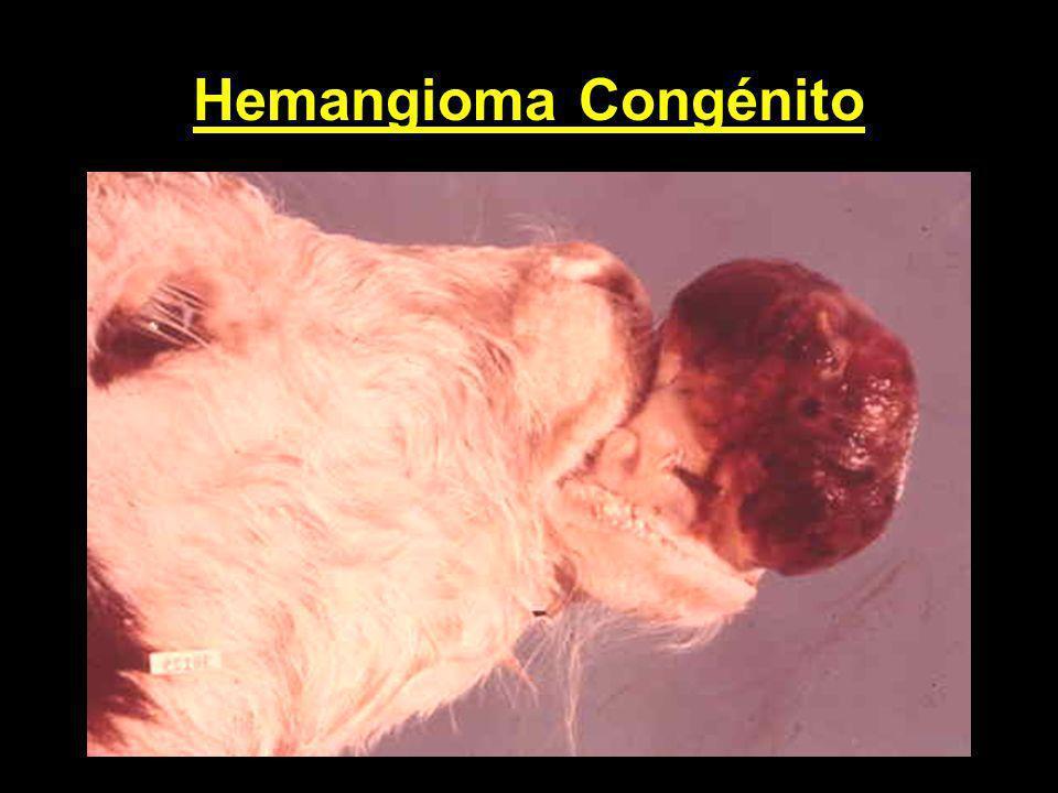 Hemangioma Congénito