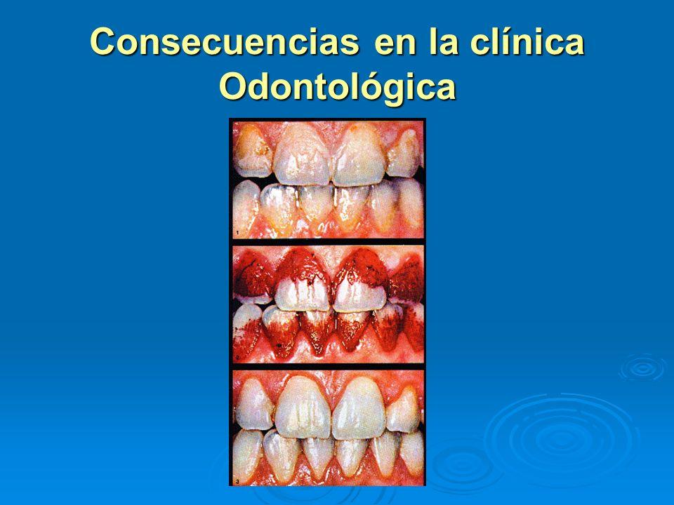 Consecuencias en la clínica Odontológica