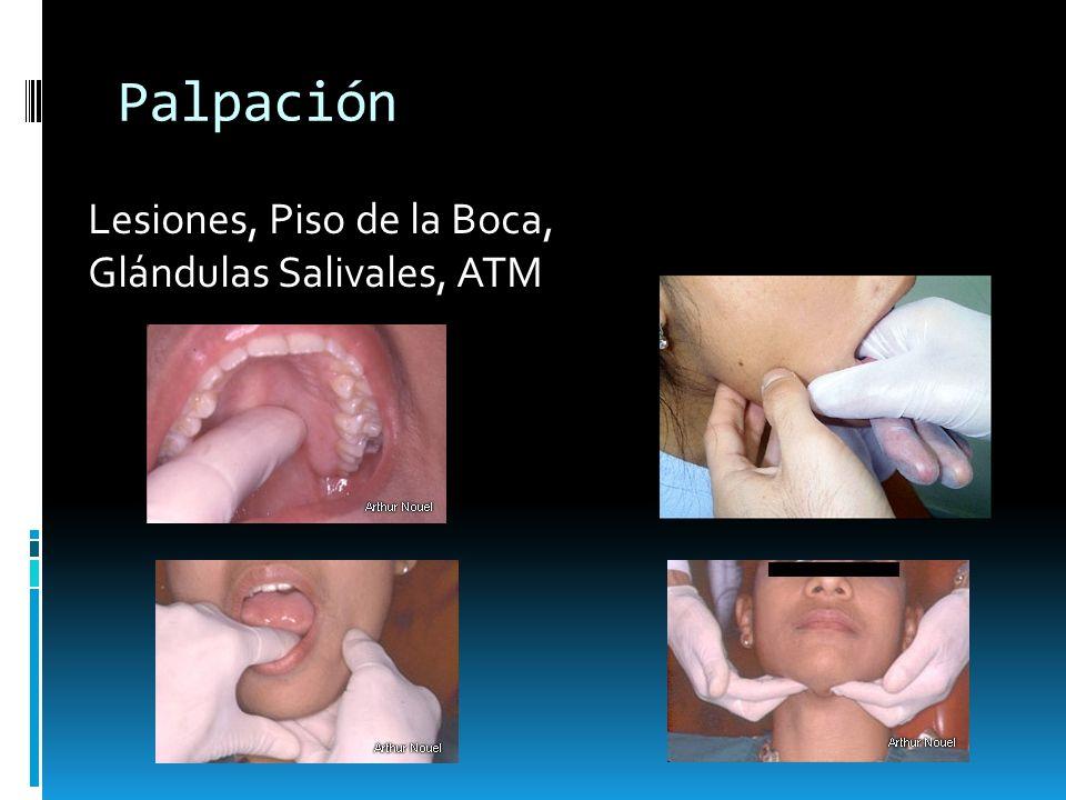 Palpación Lesiones, Piso de la Boca, Glándulas Salivales, ATM
