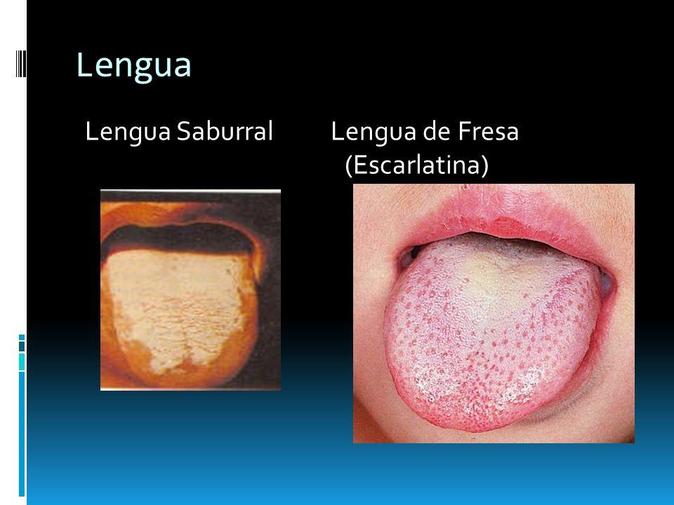 Lengua Saburral Lengua de Fresa (Escarlatina)
