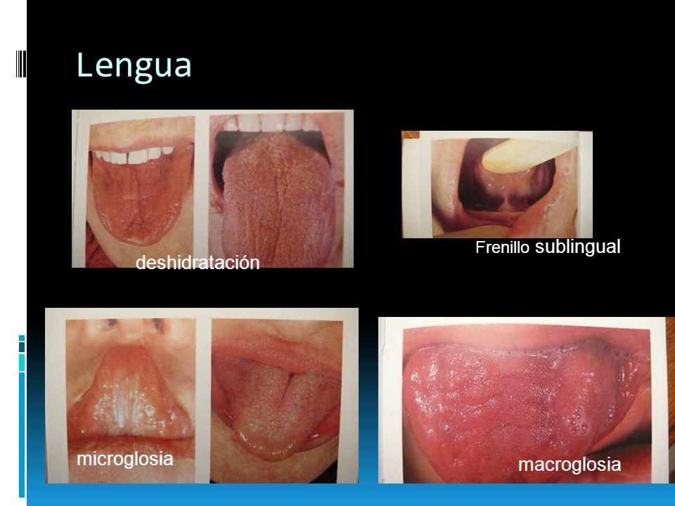 Lengua Frenillo sublingual deshidratación microglosia macroglosia