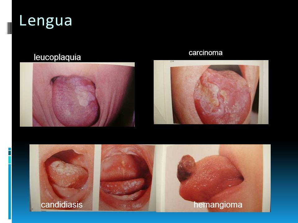 Lengua carcinoma leucoplaquia candidiasis hemangioma