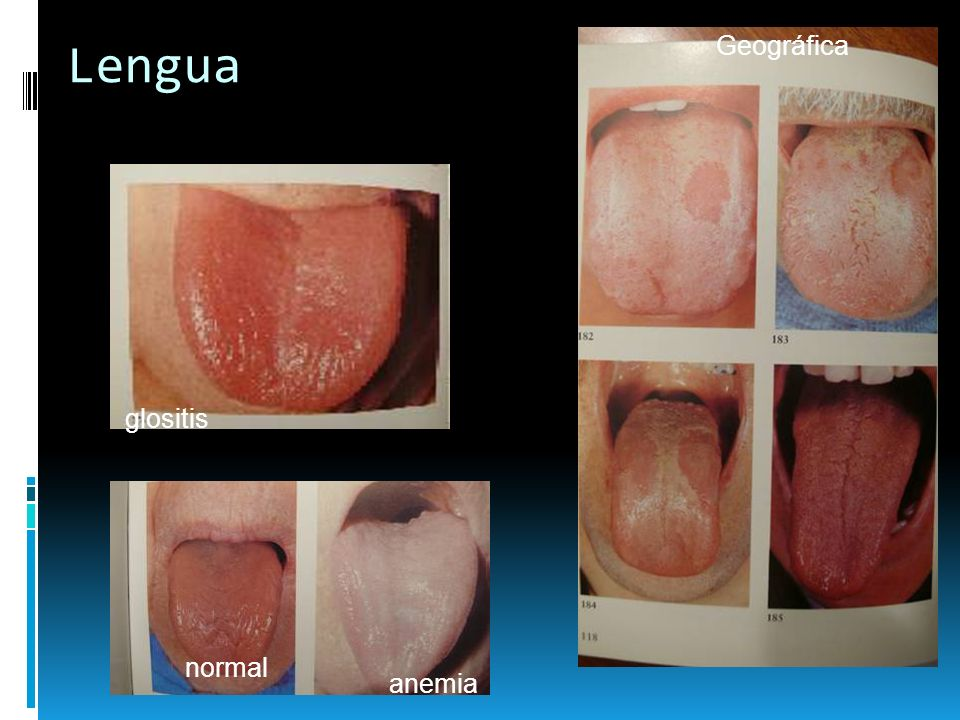 Lengua Geográfica glositis normal anemia