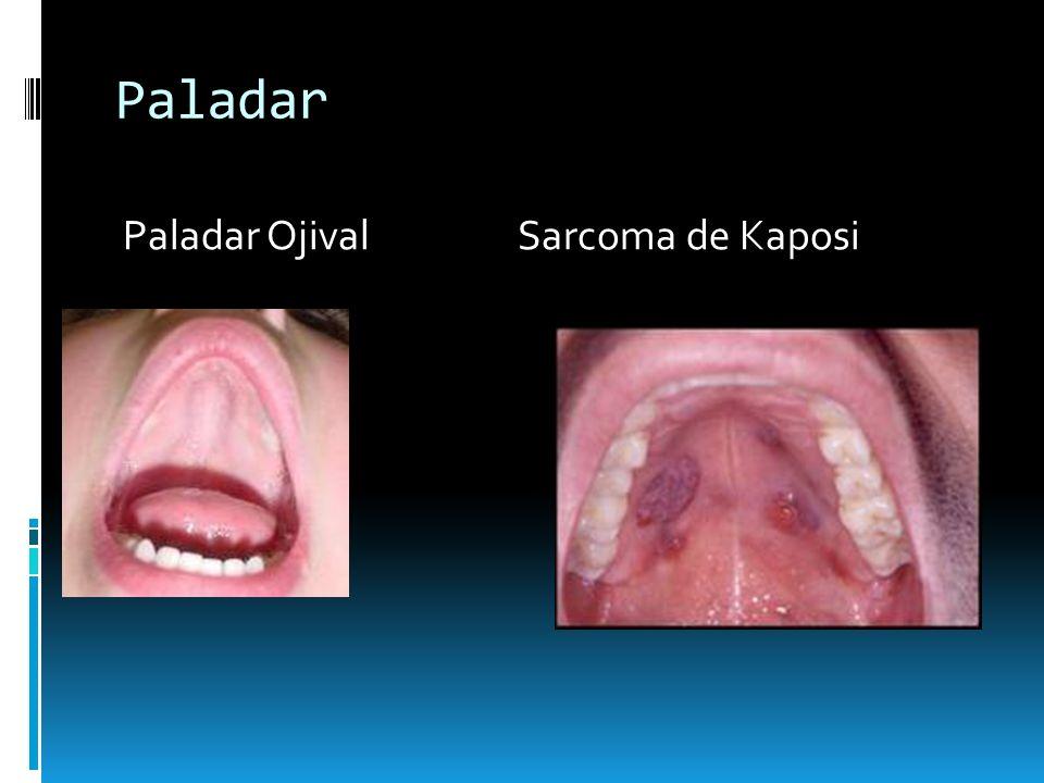 Paladar Paladar Ojival Sarcoma de Kaposi