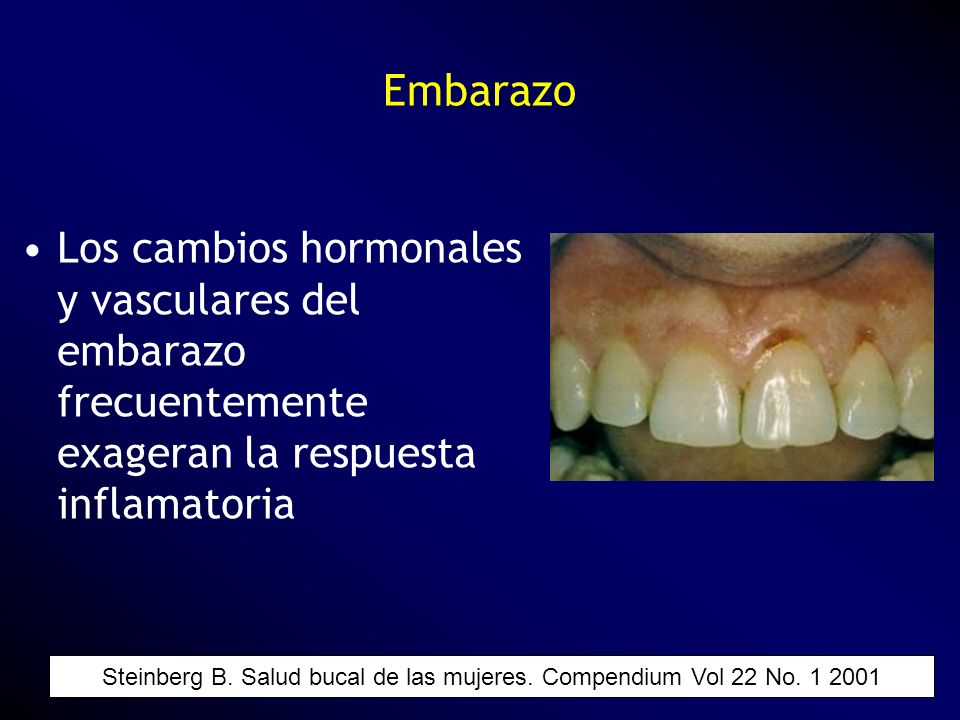 Steinberg B. Salud bucal de las mujeres. Compendium Vol 22 No. 1 2001