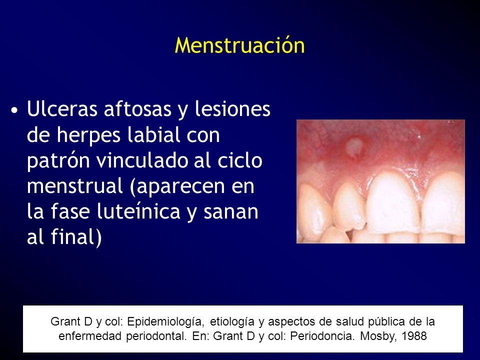 MenstruaciónUlceras aftosas y lesiones de herpes labial con patrón vinculado al ciclo menstrual (aparecen en la fase luteínica y sanan al final)