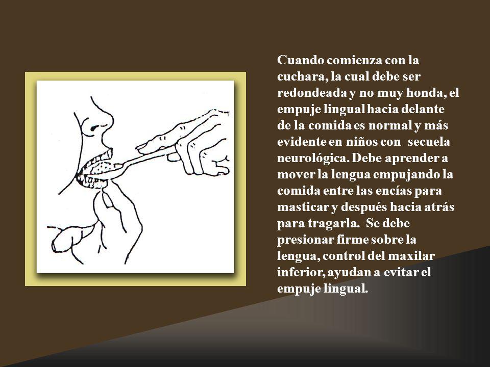 Cuando comienza con la cuchara, la cual debe ser redondeada y no muy honda, el empuje lingual hacia delante de la comida es normal y más evidente en niños con secuela neurológica.