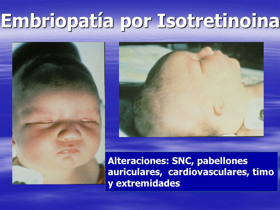 Embriopatía por Isotretinoina