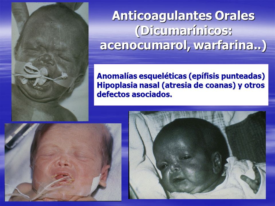 Anticoagulantes Orales (Dicumarínicos: acenocumarol, warfarina..)