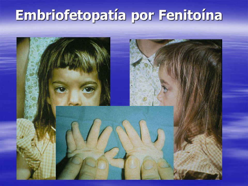 Embriofetopatía por Fenitoína