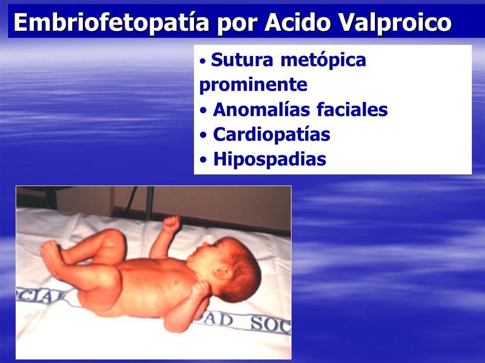 Embriofetopatía por Acido Valproico