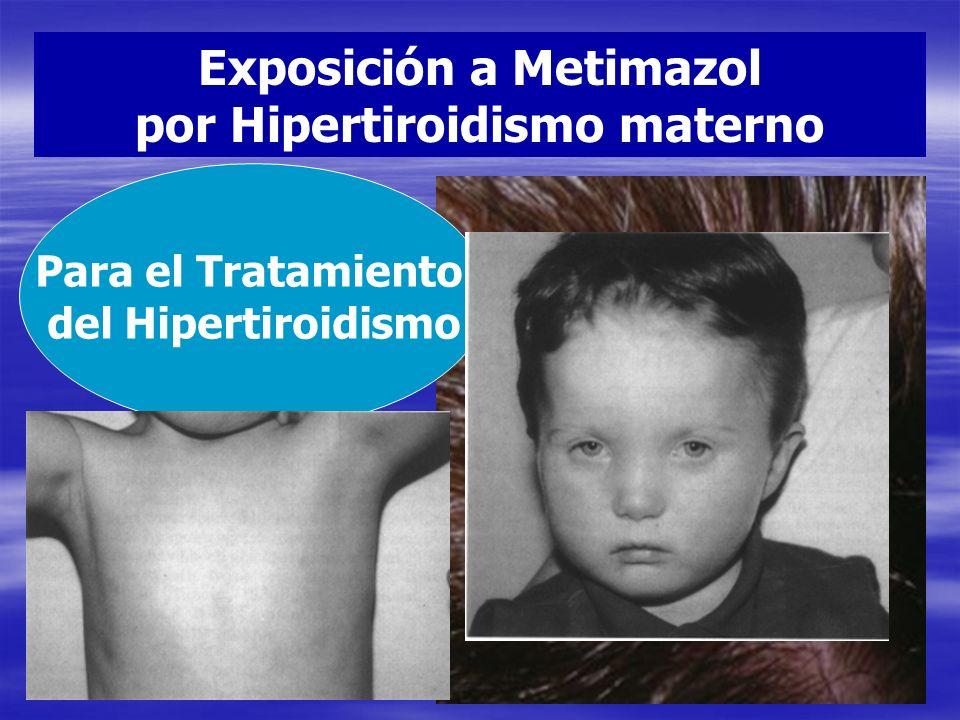 Exposición a Metimazol por Hipertiroidismo materno