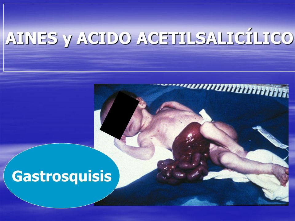 AINES y ACIDO ACETILSALICÍLICO