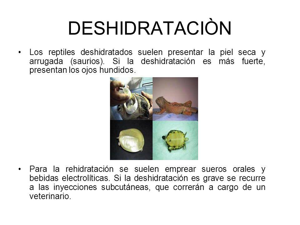 DESHIDRATACIÒN