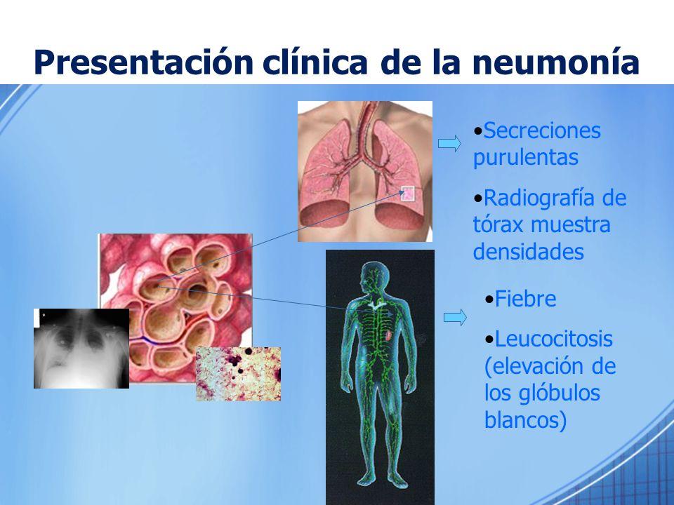 Presentación clínica de la neumonía