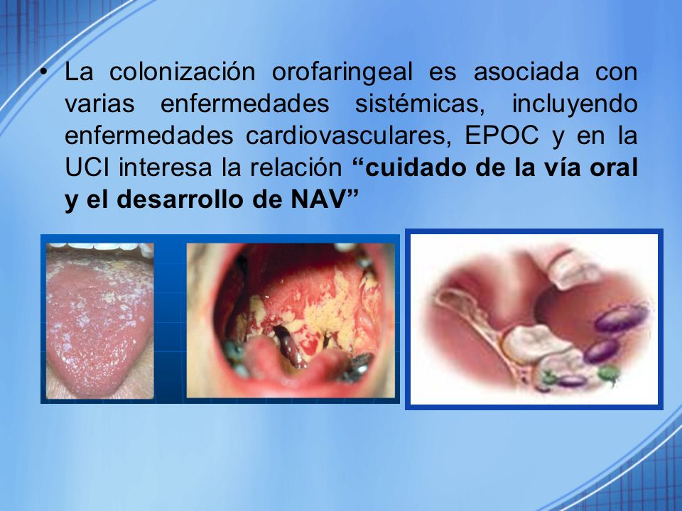 La colonización orofaringeal es asociada con varias enfermedades sistémicas, incluyendo enfermedades cardiovasculares, EPOC y en la UCI interesa la relación cuidado de la vía oral y el desarrollo de NAV