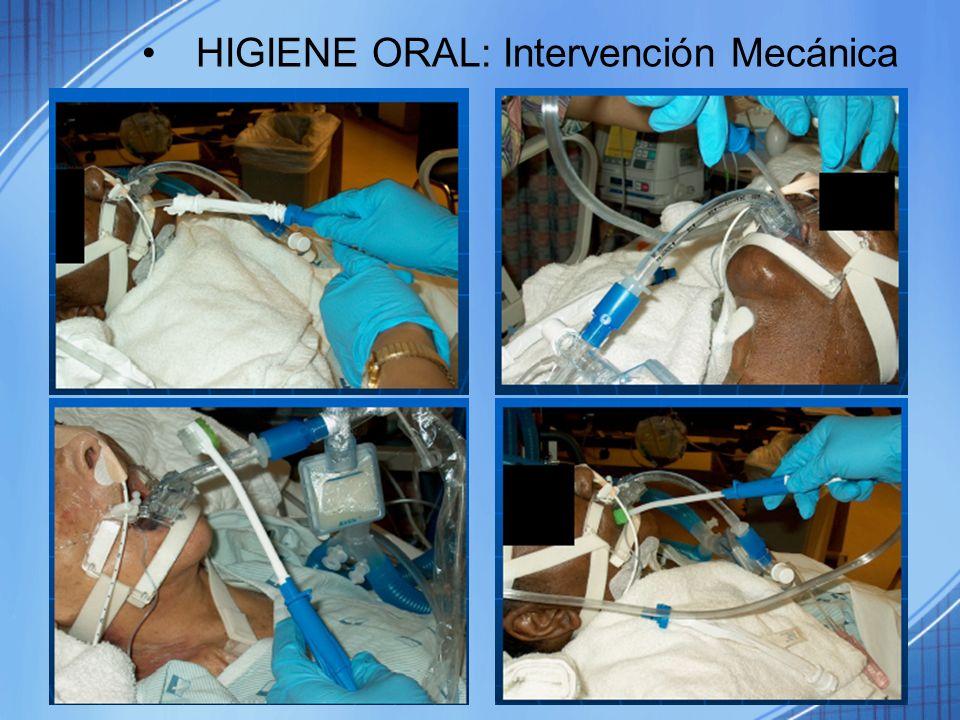 HIGIENE ORAL: Intervención Mecánica