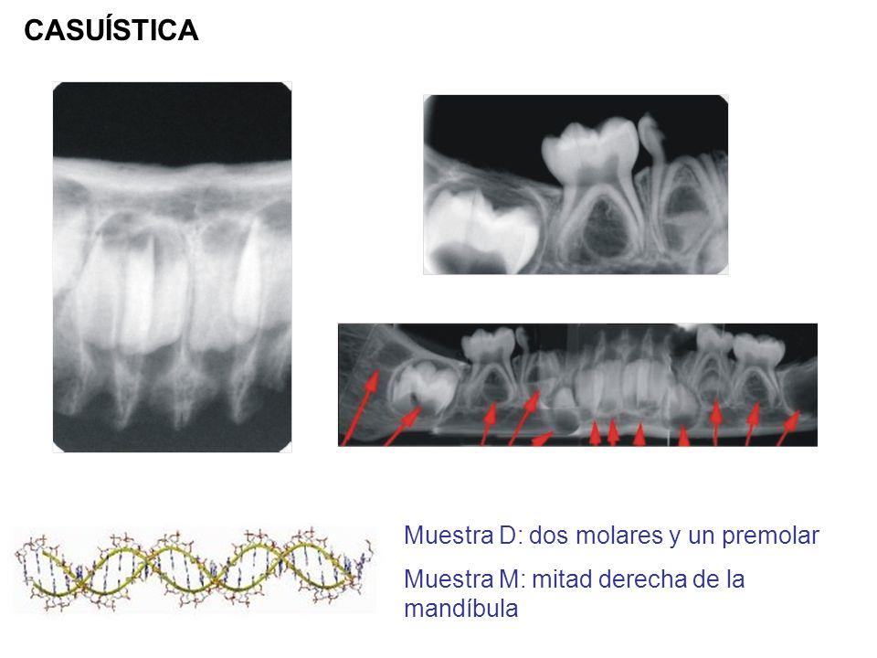 CASUÍSTICA Muestra D: dos molares y un premolar