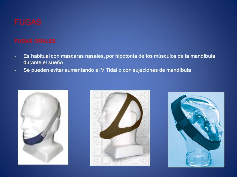 FUGAS FUGAS ORALES. Es habitual con mascaras nasales, por hipotonía de los músculos de la mandíbula durante el sueño.