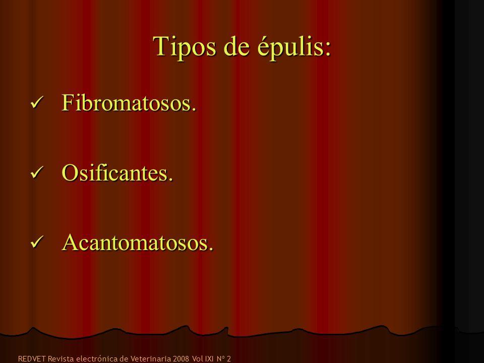 Tipos de épulis: Fibromatosos. Osificantes. Acantomatosos.