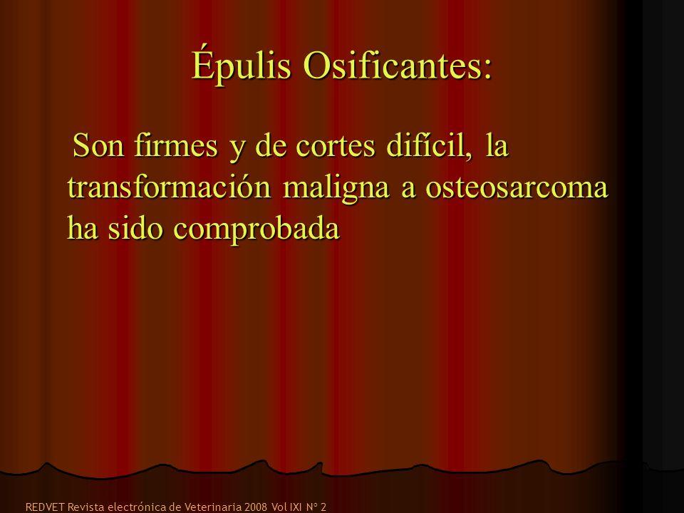 Épulis Osificantes: Son firmes y de cortes difícil, la transformación maligna a osteosarcoma ha sido comprobada.