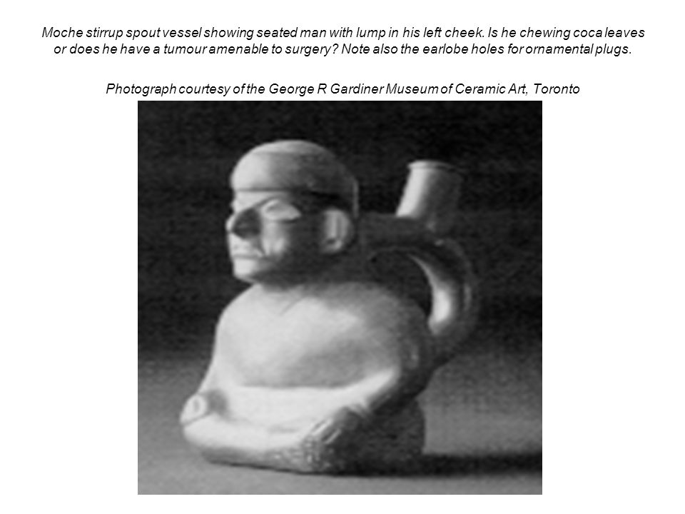 Moche stirrup spout vessel showing seated man with lump in his left cheek.