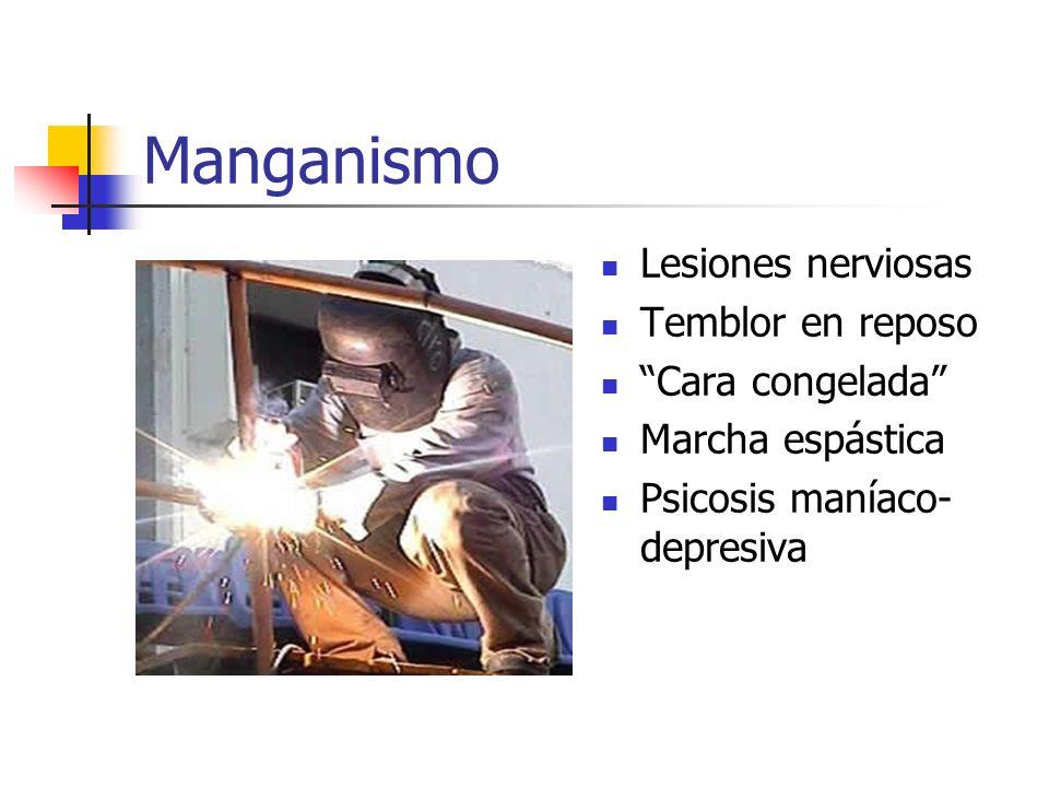 Manganismo Lesiones nerviosas Temblor en reposo Cara congelada