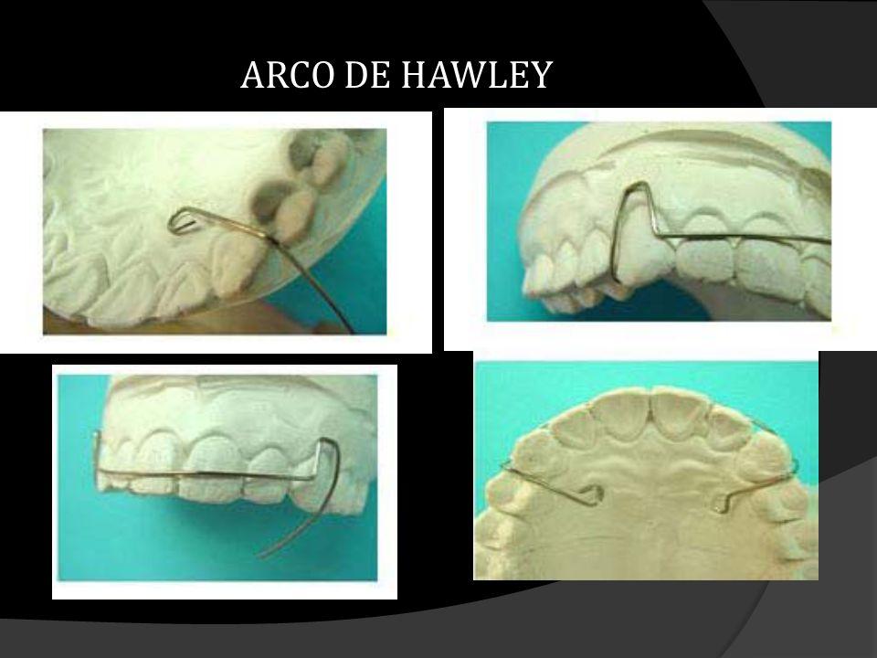 ARCO DE HAWLEY