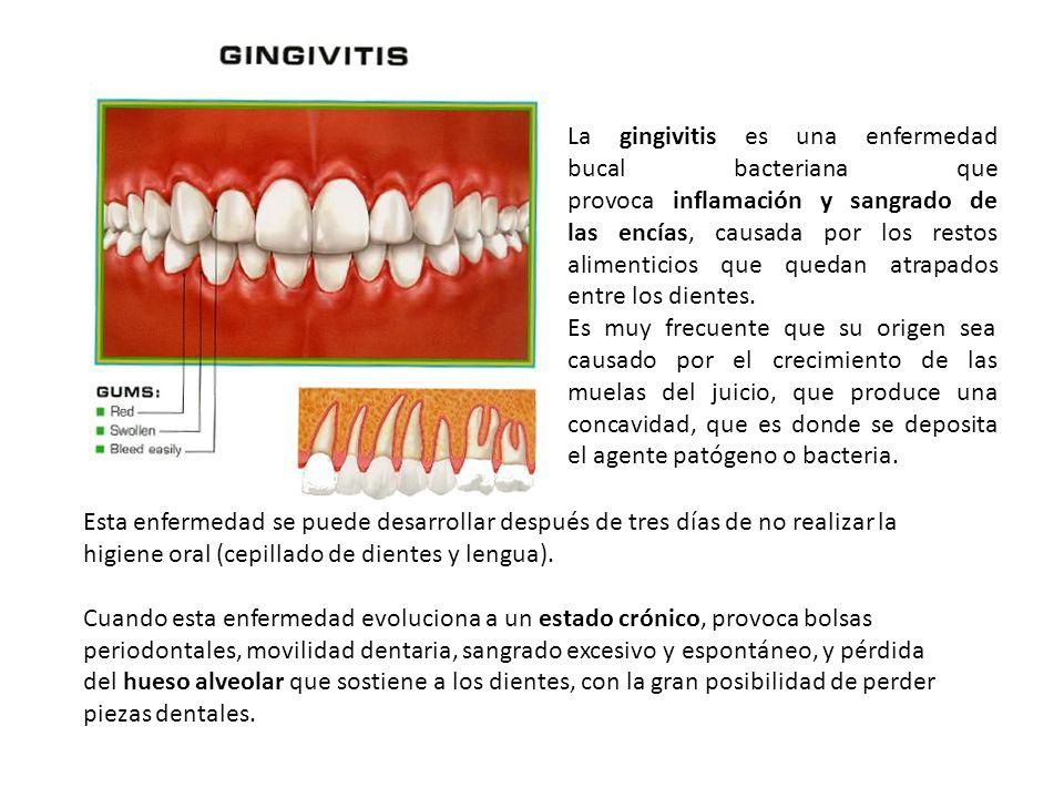 La gingivitis es una enfermedad bucal bacteriana que provoca inflamación y sangrado de las encías, causada por los restos alimenticios que quedan atrapados entre los dientes.