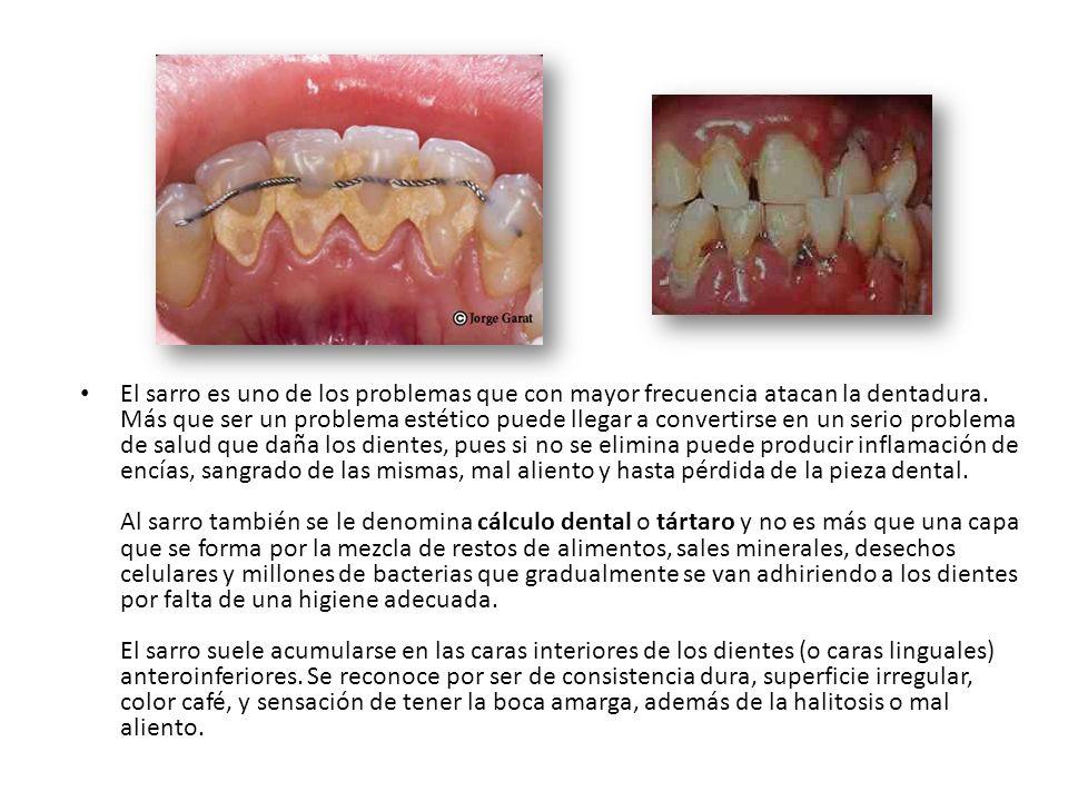 El sarro es uno de los problemas que con mayor frecuencia atacan la dentadura.