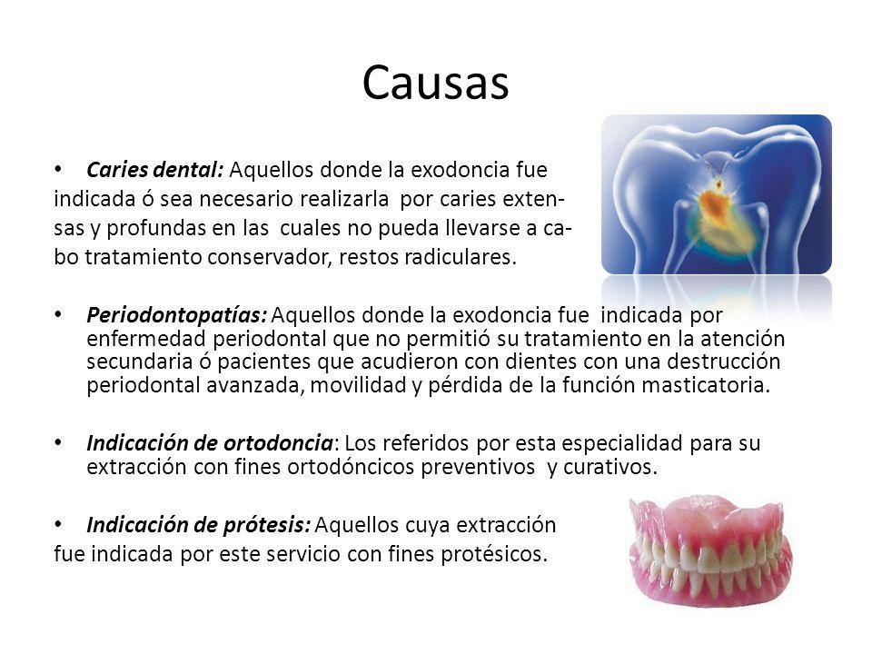 Causas Caries dental: Aquellos donde la exodoncia fue