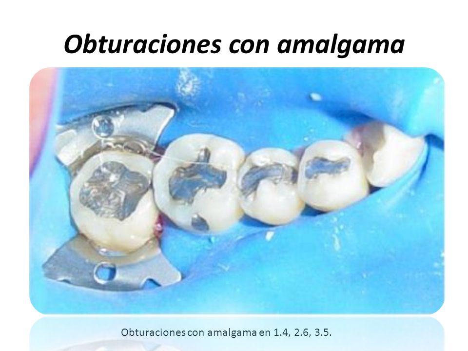 Obturaciones con amalgama