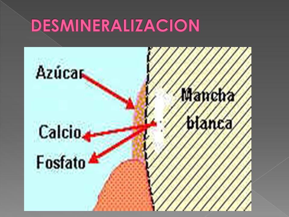 DESMINERALIZACION