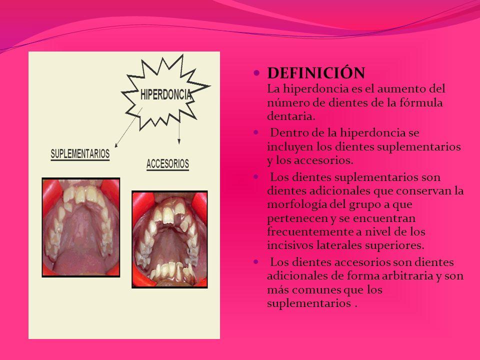 DEFINICIÓN La hiperdoncia es el aumento del número de dientes de la fórmula dentaria.
