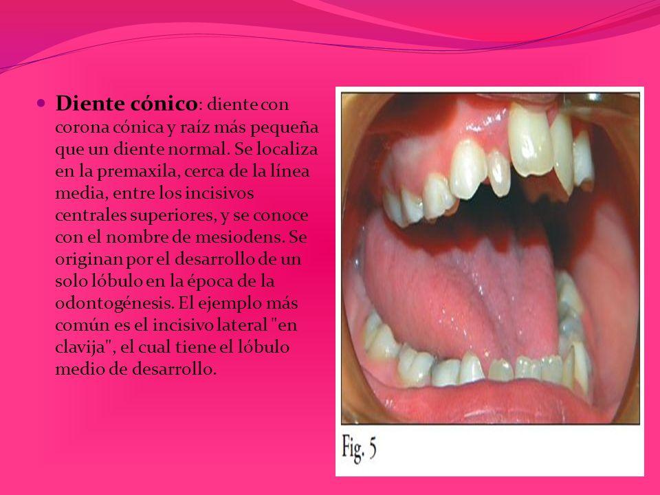 Diente cónico: diente con corona cónica y raíz más pequeña que un diente normal.