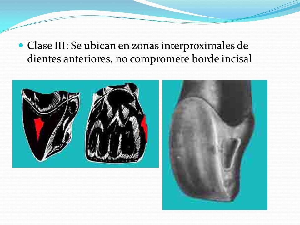 Clase III: Se ubican en zonas interproximales de dientes anteriores, no compromete borde incisal