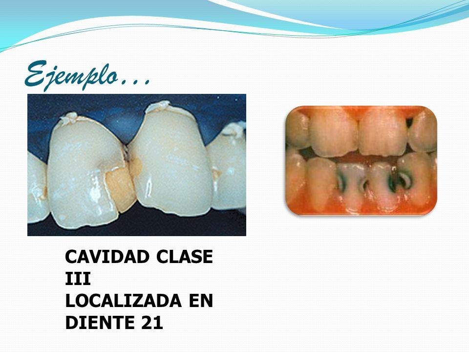 Ejemplo… CAVIDAD CLASE III LOCALIZADA EN DIENTE 21