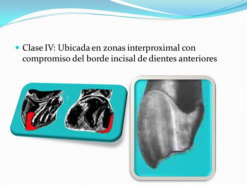 Clase IV: Ubicada en zonas interproximal con compromiso del borde incisal de dientes anteriores