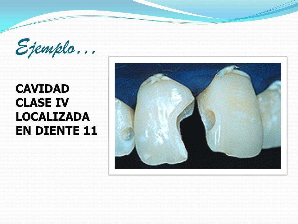 Ejemplo… CAVIDAD CLASE IV LOCALIZADA EN DIENTE 11