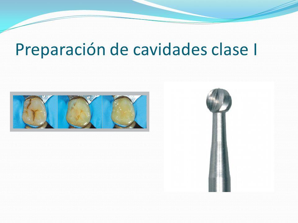 Preparación de cavidades clase I