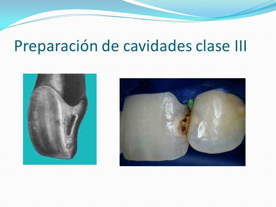 Preparación de cavidades clase III