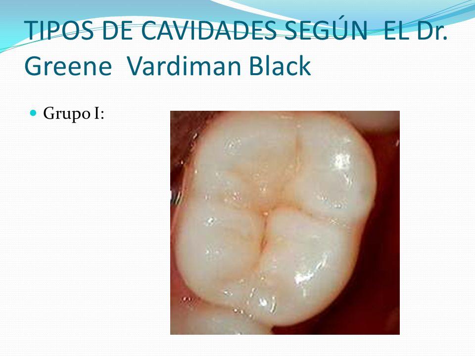 TIPOS DE CAVIDADES SEGÚN EL Dr. Greene Vardiman Black