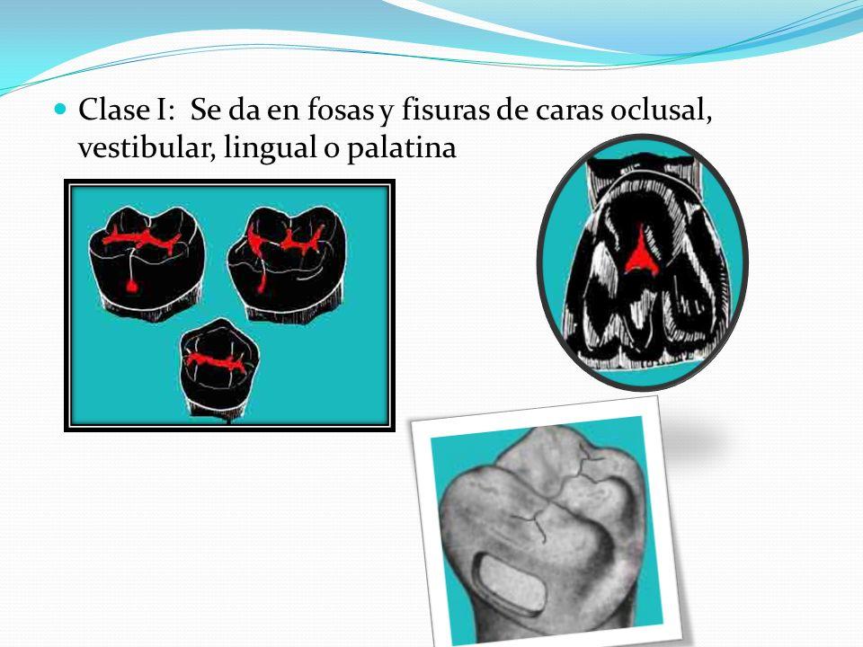 Clase I: Se da en fosas y fisuras de caras oclusal, vestibular, lingual o palatina