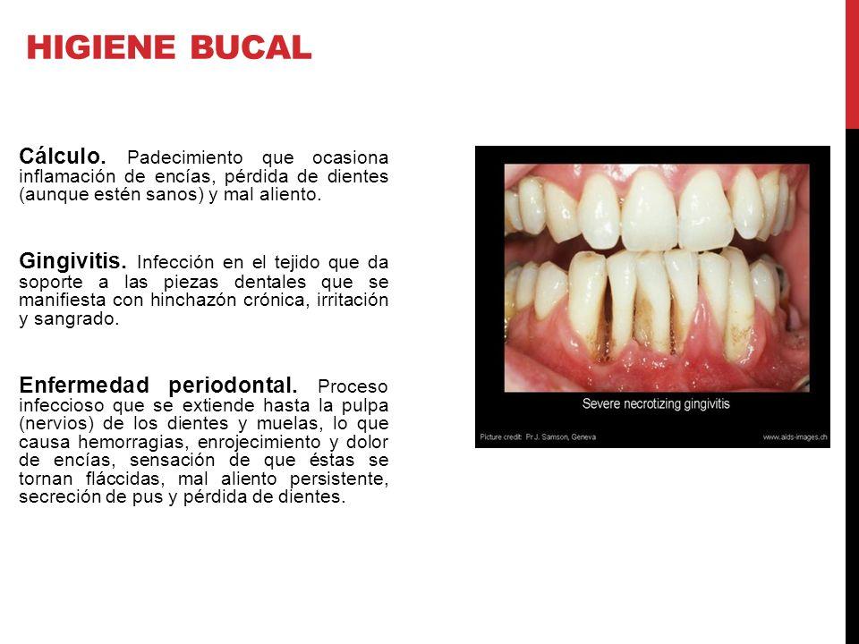 HIGIENE BUCAL Cálculo. Padecimiento que ocasiona inflamación de encías, pérdida de dientes (aunque estén sanos) y mal aliento.