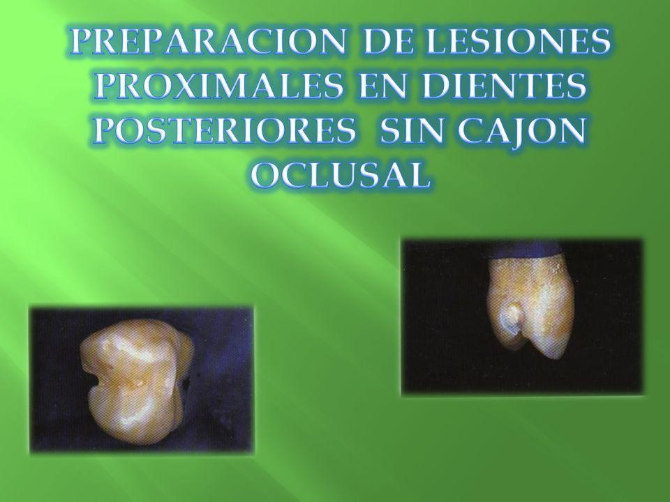 PREPARACION DE LESIONES PROXIMALES EN DIENTES POSTERIORES SIN CAJON OCLUSAL