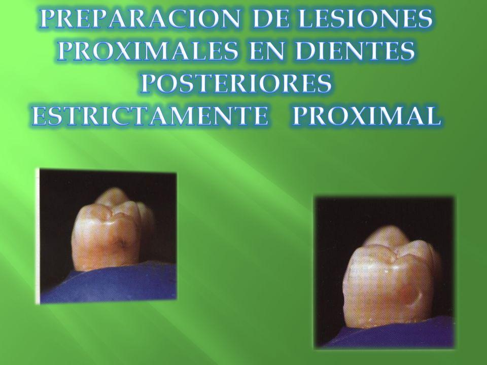 PREPARACION DE LESIONES PROXIMALES EN DIENTES POSTERIORES ESTRICTAMENTE PROXIMAL
