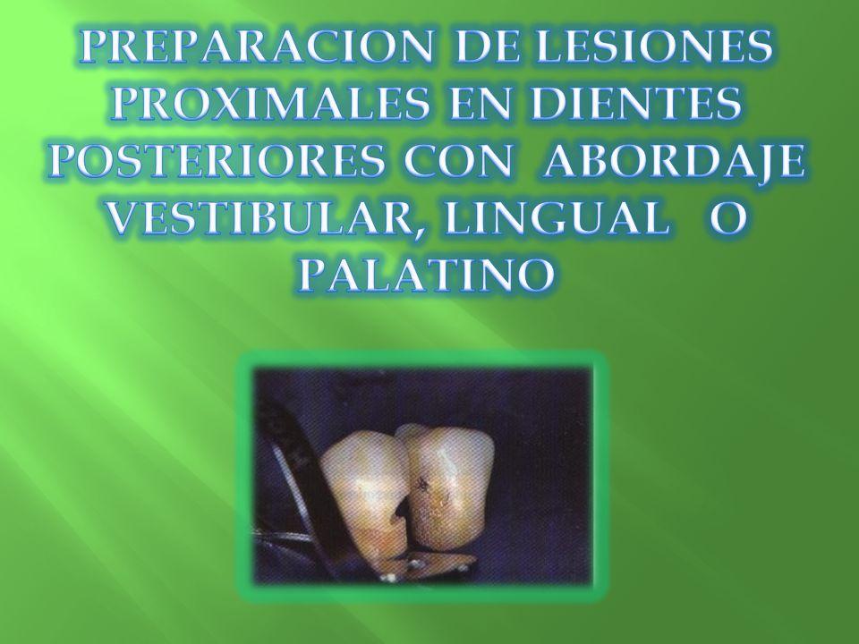 PREPARACION DE LESIONES PROXIMALES EN DIENTES POSTERIORES CON ABORDAJE VESTIBULAR, LINGUAL O PALATINO
