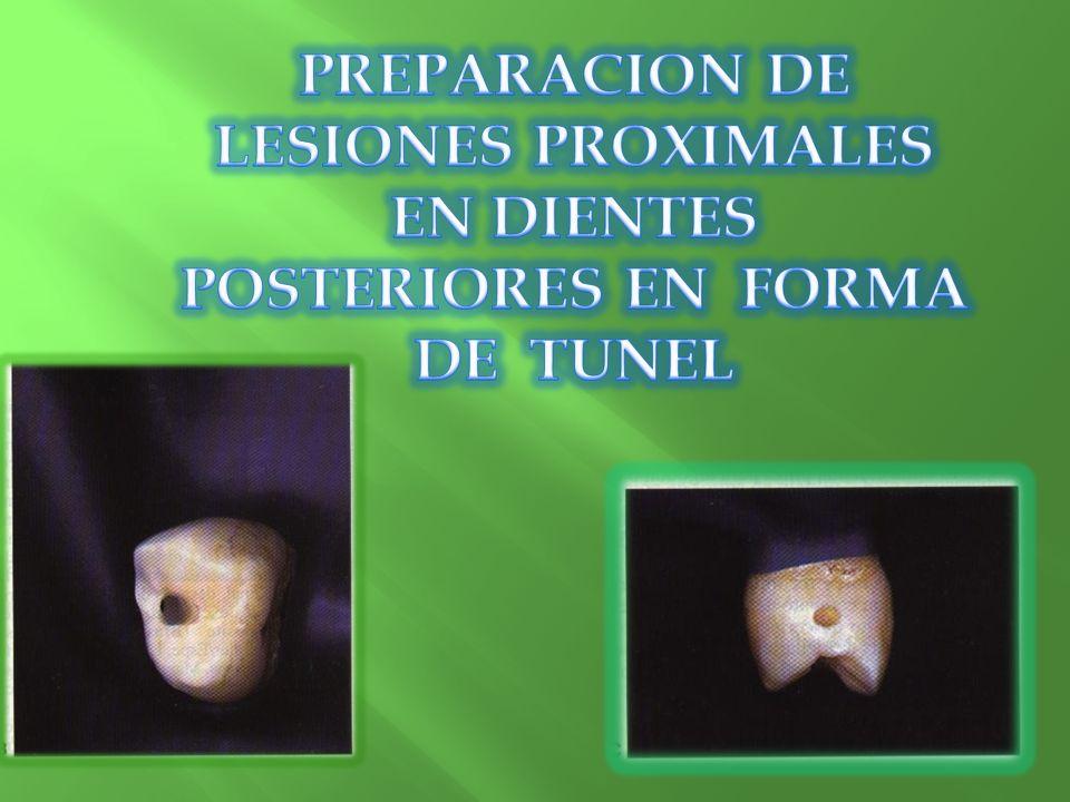 PREPARACION DE LESIONES PROXIMALES EN DIENTES POSTERIORES EN FORMA DE TUNEL