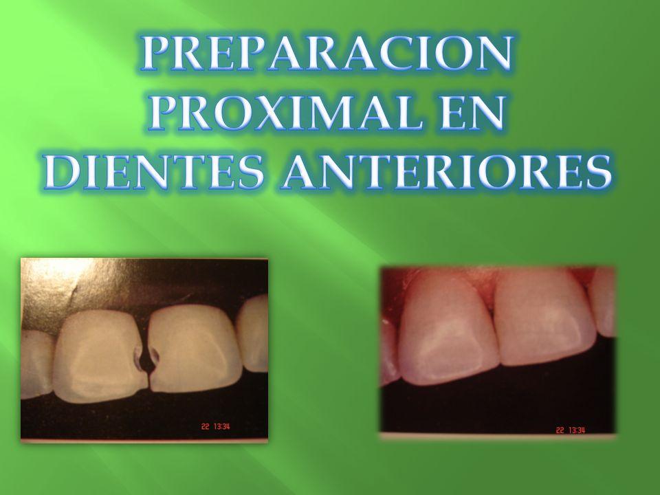 PREPARACION PROXIMAL EN DIENTES ANTERIORES